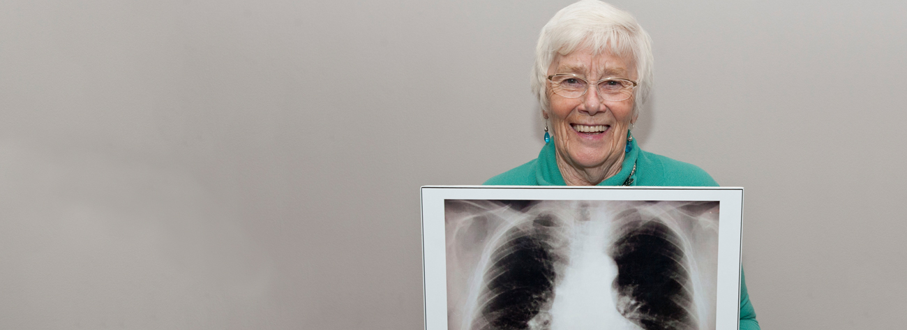 Ann Long, supporter and lung cancer survivor,